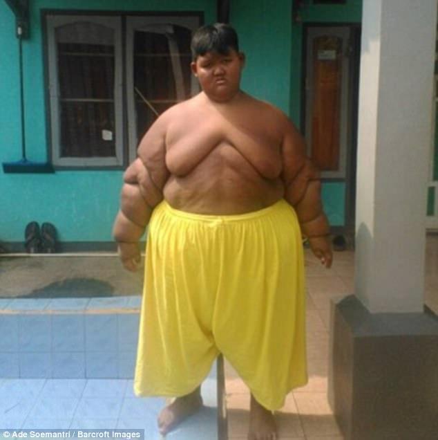 world's fattest boy
